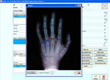Radyoloji Modülü